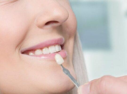 dental veneers glasgow
