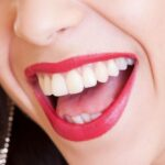 Why Everyone Is Talking About Teeth Straightening Glasgow